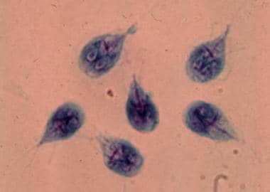 giardia bebe nz what does nasal papilloma mean