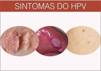 hpv genital feminina sintomas cum să vindecăm corpul uman