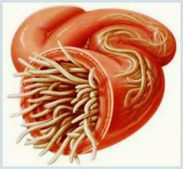 Paraziții intestinali la copii, dar și la adulți