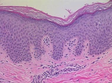 paraziții les dipteres papillomavirus homme douleur