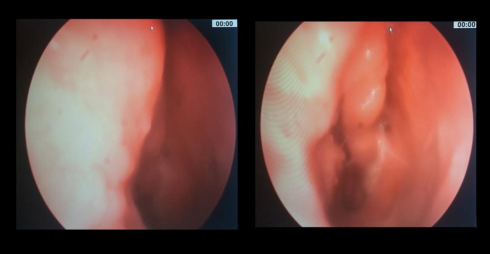 Rimozione papilloma gola Hpv virus keel