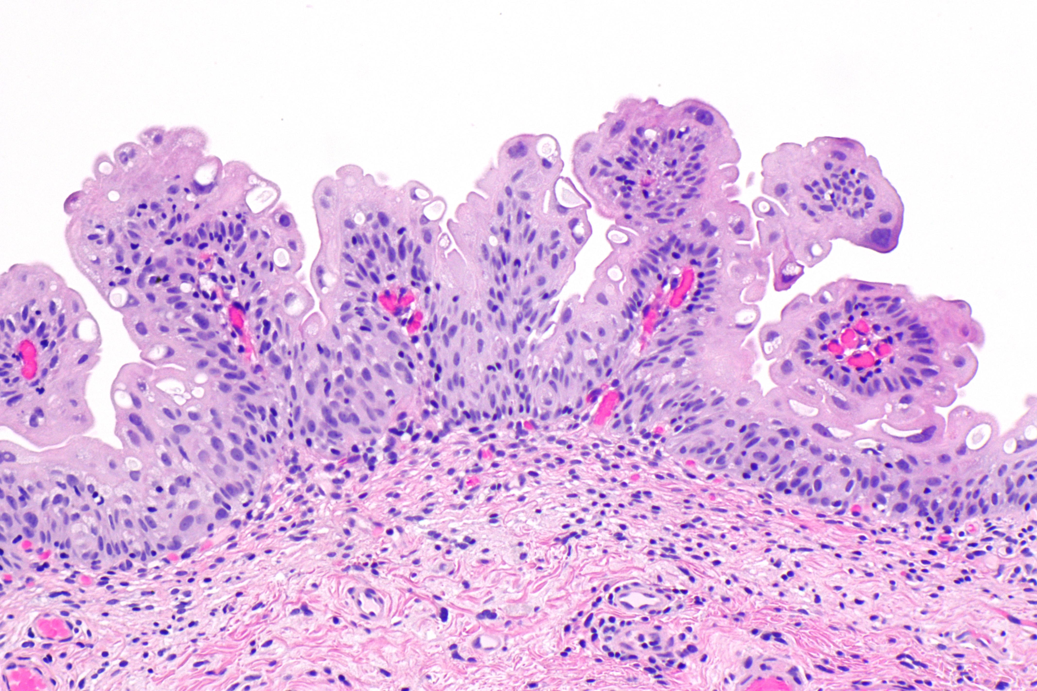 bladder inverted papilloma
