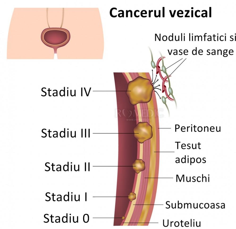 cancerul vezicii urinare ellenele vierme