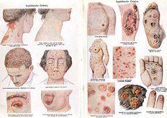 papilloma hayeren bacterie qui mange la peau