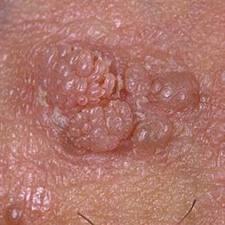 le papillomavirus symptomes