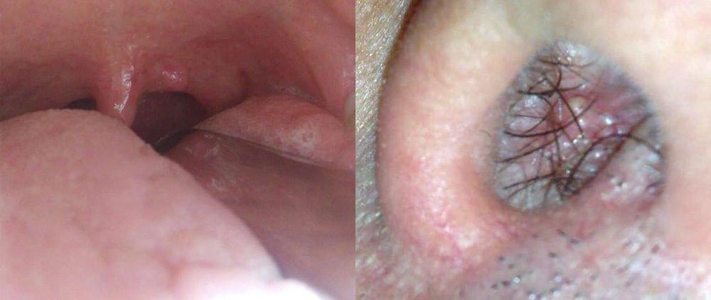 Papilloma alla vescica, Hpv under tongue pictures