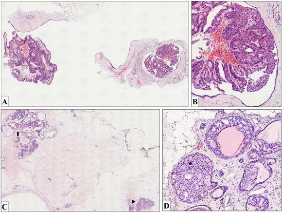 hpv small genital warts condyloma acuminatum behandlung