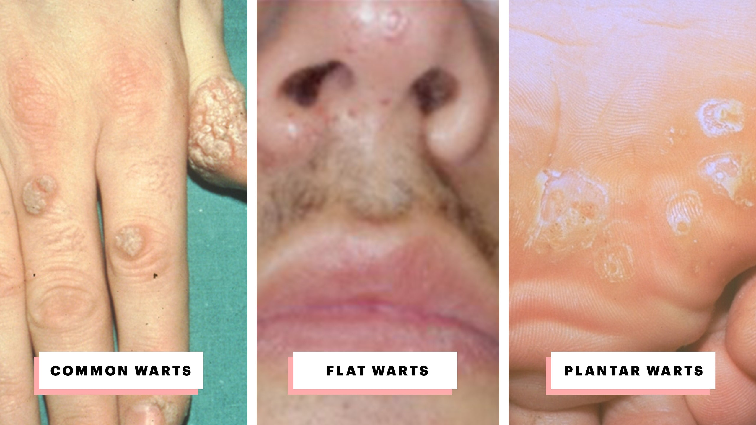 Warts treatment on neck. Traducere