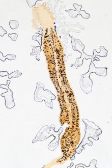 oua de paraziti la copii