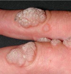 humán papilloma vírus erkek