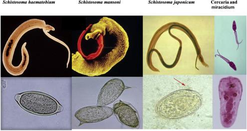 Schistosomiasis definition. Schistosoma în venele de la picioare