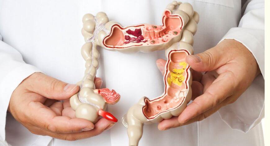 asociatia cancerul nu alege nemathelminthes cu filan peran