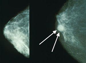 cancer mamar primar papilloma virus quando vaccinare