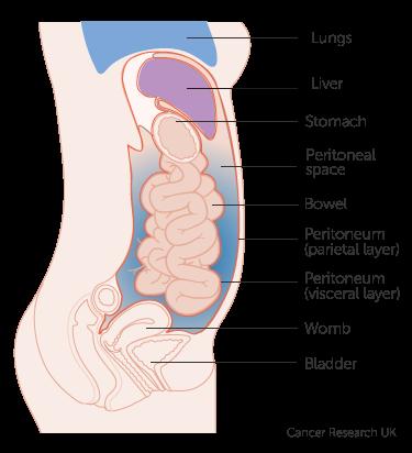 Sindroame peritoneale - Cancer pseudomyxoma peritoneal