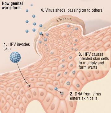 Männern bei hpv viren Eine HPV