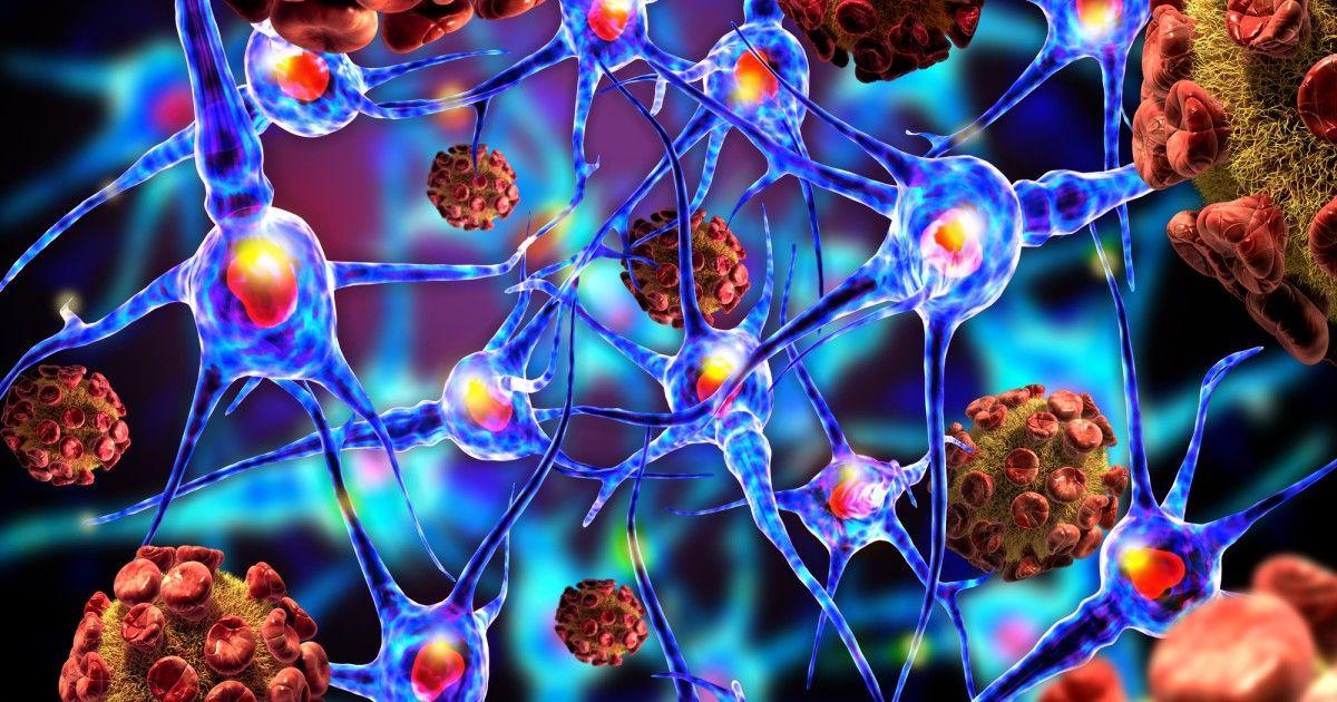 hepatic cancer nutrition medicament parazitar alergic