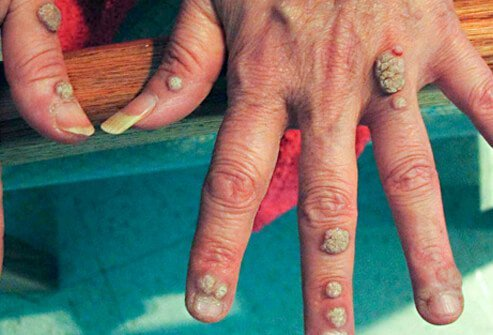 warts on hands icd 10)