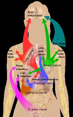 neuroendocrine cancer spread to liver and bones