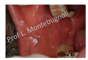 papilloma frenulo lingua papillary lesion lung