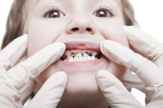 respiratie urat mirositoare la copii 3 ani foot wart define