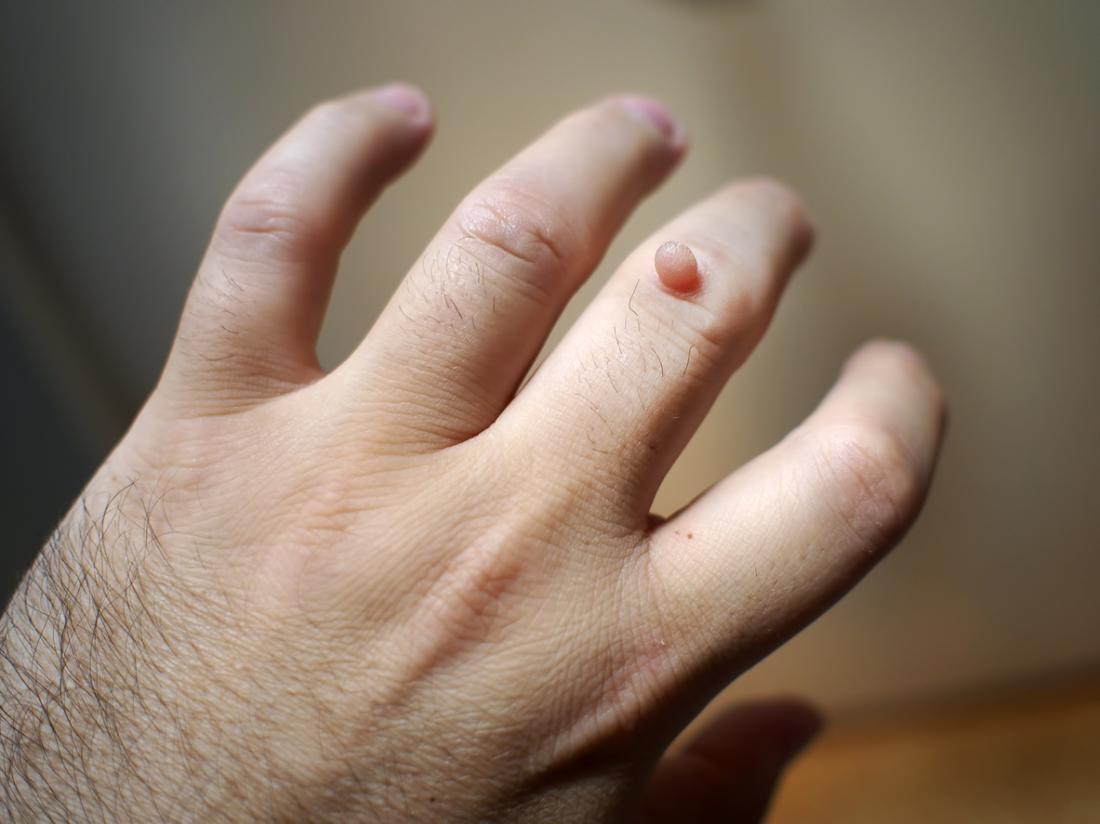 can warts on hands be painful pastile parazitare pentru întreaga familie