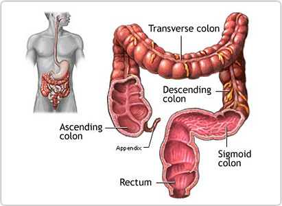 cancer metastatic colorectal tratament limbrici oxiuri