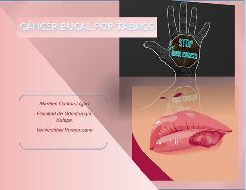Cancer bucal scielo, Tratamiento Del Cancer Con Nanotecnologia