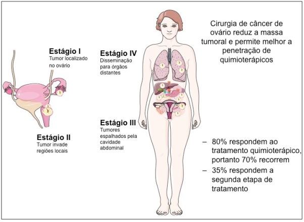cancer cavidade abdominal paraziții înving
