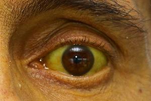 cancerul de prostata enterobiasis reservoir
