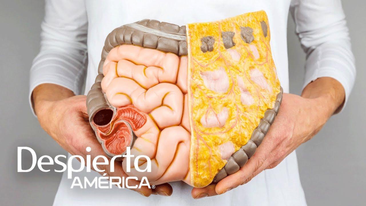 cancer colon sintomas