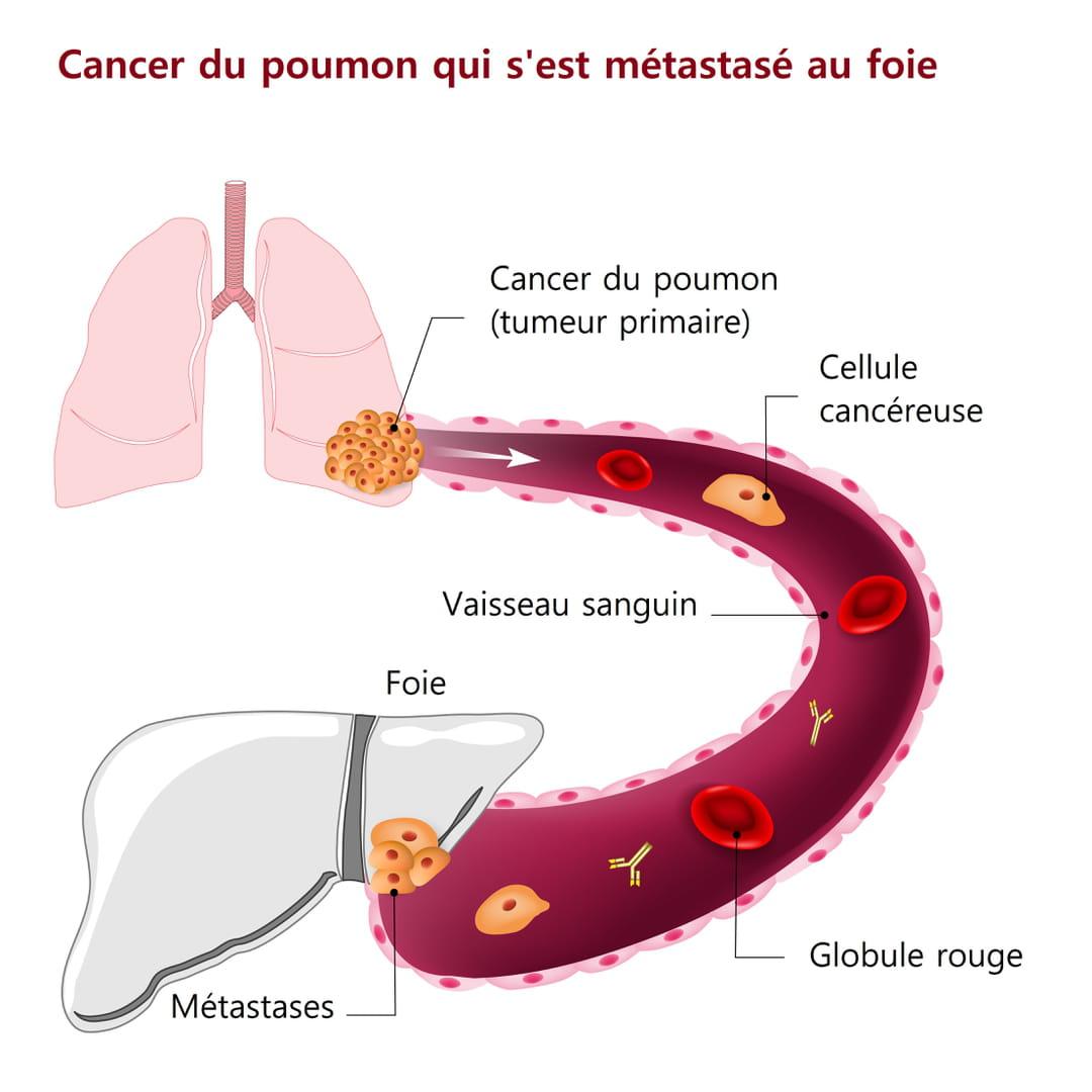 cancer colorectal stade 4 esperance de vie hpv vaccine cures skin cancer