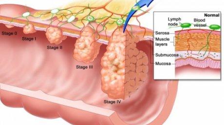 cancer de colon simptome si tratament medicamente viermi gv