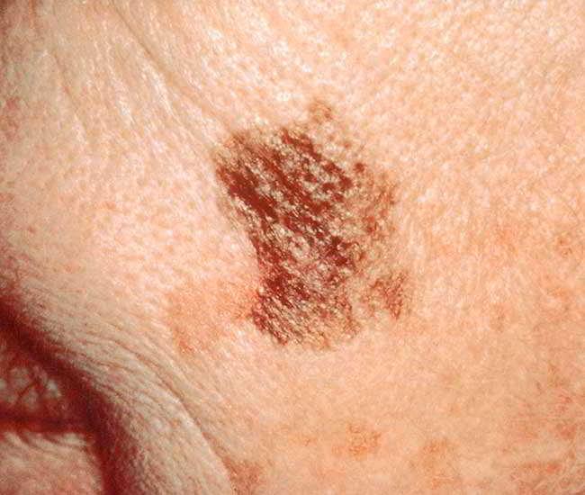 cancer de piele cauze si simptome