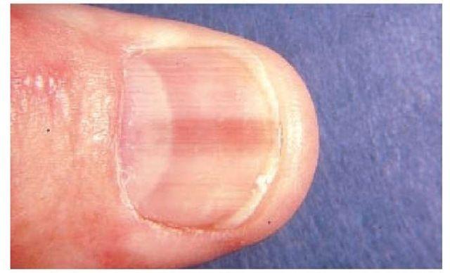 cancer de piele unghii