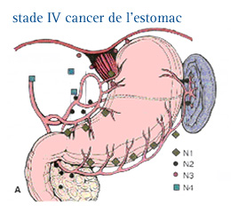 cancer gastrique metastatic