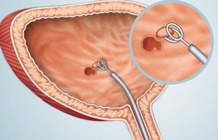cancer vezica urinara barbati simptome)