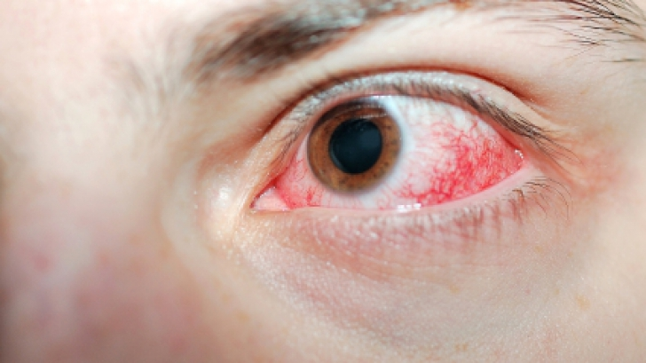 cancerul ocular simptome