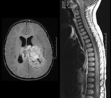 choroid plexus papilloma medscape benign cancer ppt
