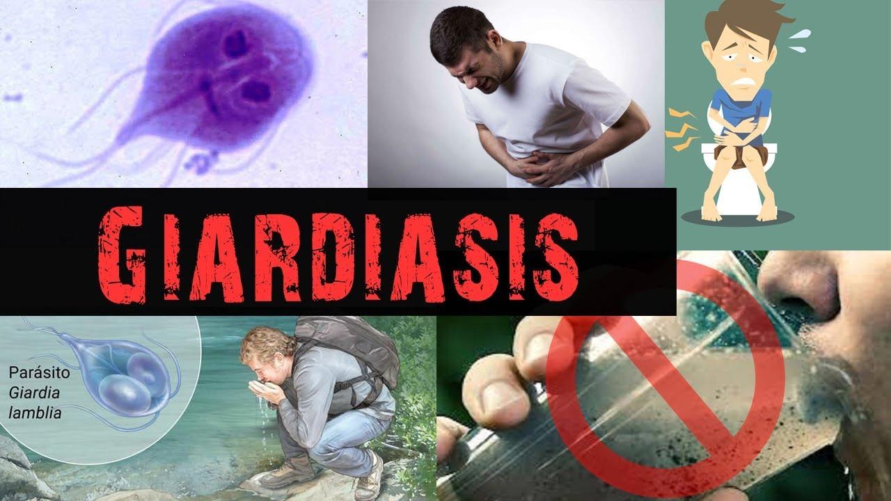 regim de tratament pentru giardiază la adulți