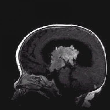 choroid plexus papilloma medscape papillomatosis irregular acanthosis