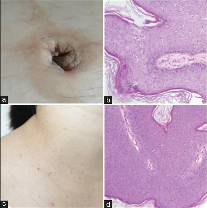 condyloma acuminatum in pregnancy hpv impfung durchfall