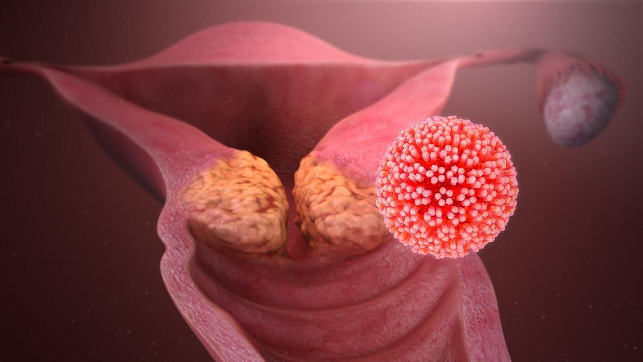papillomavirus de la gorge sursa de infecție cu viermi rotunzi