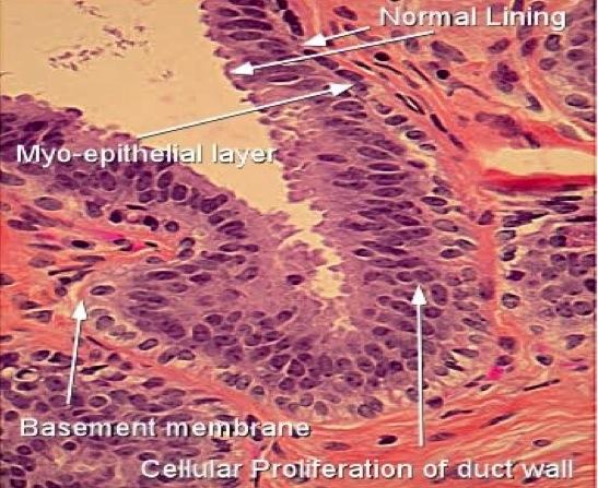 tratament mixt cu helmintiază