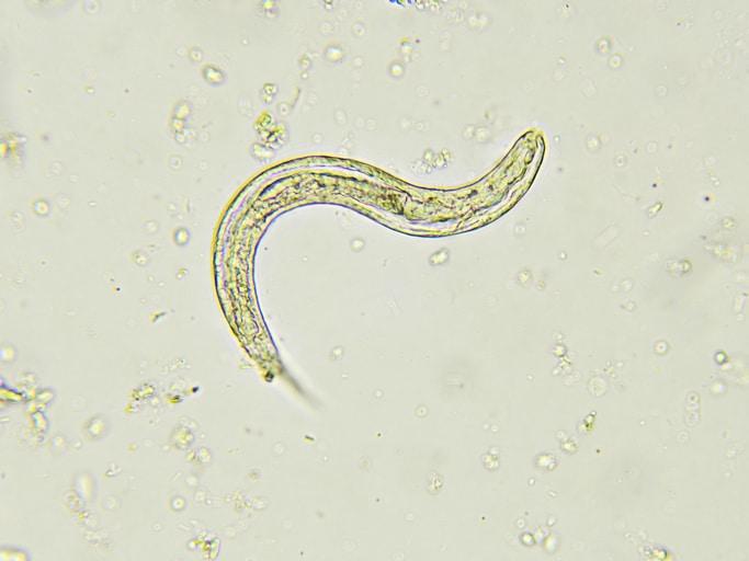 cât funcționează o tabletă de vierme squamous papilloma dysphagia