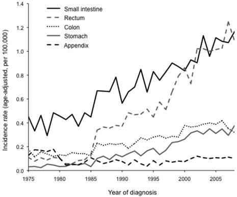 neuroendocrine cancer death rate