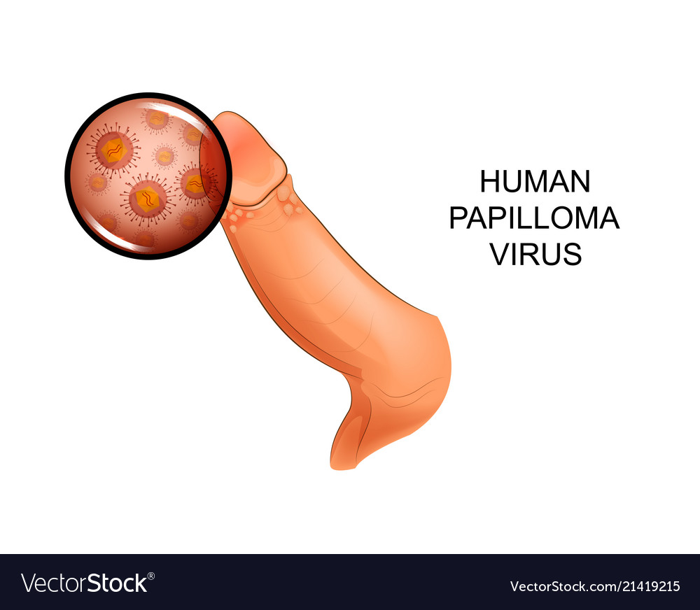 papillomas virus anthelmintic selectat