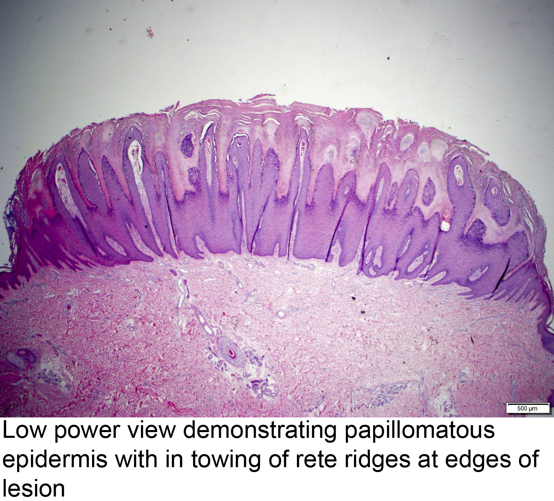 papillomatosis skin pathology