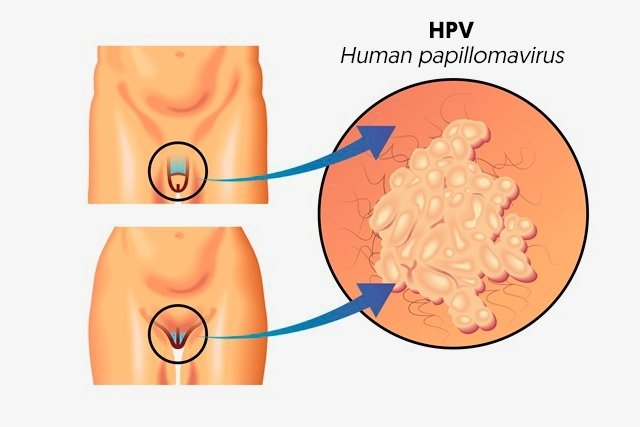 hpv virus effects tratamentul enterobiozei cronice