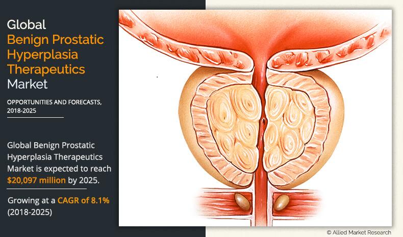 prostate cancer benign hypertrophy