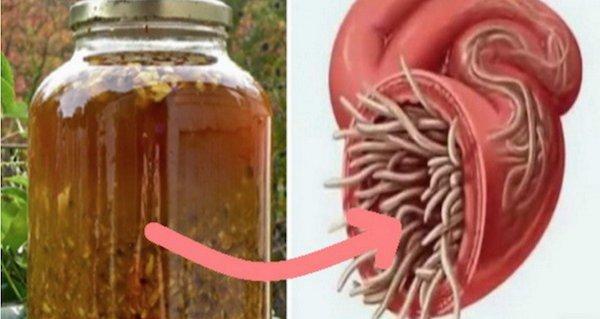 tratarea parazitului corpului cu o pastilă